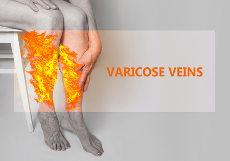 Varicose veins on a legs of old woman in fire. The varicose, spider veins, edema, illness concept. Senior pensioner woman with hands on legs. Imagens