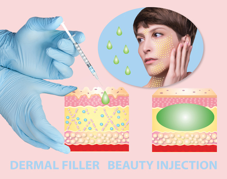 Cosmetic filler or dermal fillers Stockfoto - 121271520