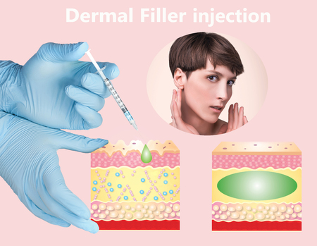 Cosmetic filler or dermal fillers Stockfoto - 121271523