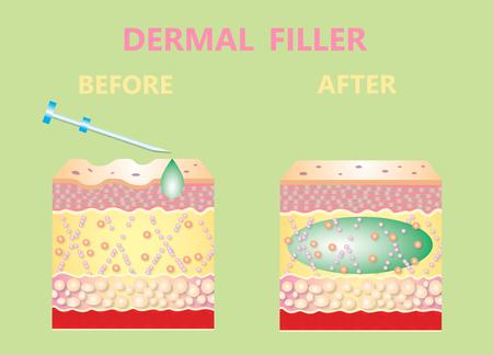Cosmetic filler or dermal fillers Stockfoto