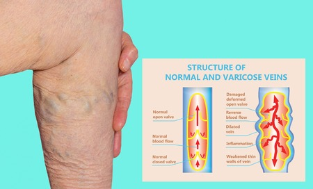 Varicose veins on a female senior legs. The structure of normal and varicose veins. Stockfoto - 121272008