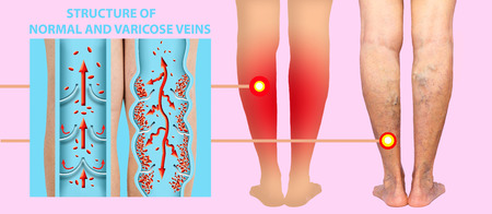 Varicose veins on a female senior legs. The structure of normal and varicose veins.