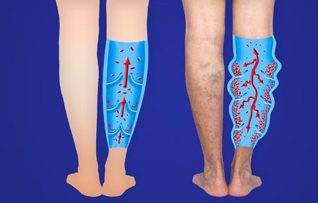 Venas varicosas en las piernas de una mujer mayor. La estructura de las venas varicosas y normales. Foto de archivo