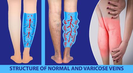 Krampfadern an den Beinen eines weiblichen Seniors. Die Struktur von normalen und Krampfadern. Konzept von trockener Haut, alten Senioren, Krampfadern und tiefer Venenthrombose oder DVT