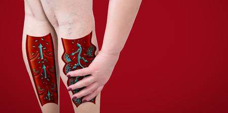Les varices sur les jambes d'un senior féminin. La structure des veines normales et variqueuses. Banque d'images