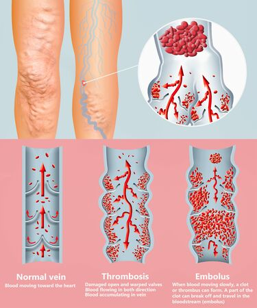 Deep Vein Thrombosis or Blood Clots. Embolus. 版權商用圖片