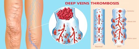 Deep Vein Thrombosis or Blood Clots. Embolus. 免版税图像