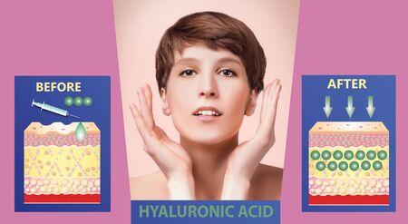 Hyaluronic acid. skin-care products. skin rejuvenation