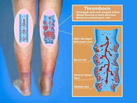 Deep Vein Thrombosis or Blood Clots. Embolus. Stockfoto