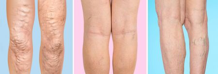 The old age and sick of a woman. Varicose veins on a legs of woman. The varicosity, spider veins, edema, illness concept. 版權商用圖片