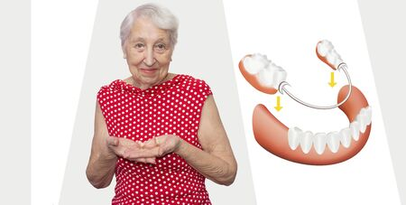 Removable flexible nylon denture on senior female hands. Dental skeletal prosthesis with porcelain crowns was created by author