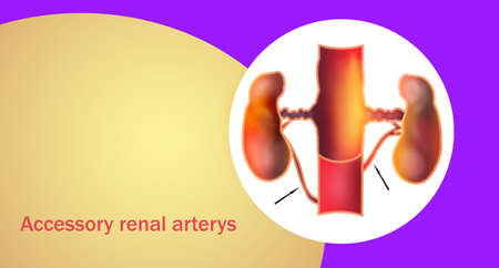 Accessory renal arteries or ARAs are embryonic remnants found in more than one-third of patients and occurring bilaterally in 10 percents of the population