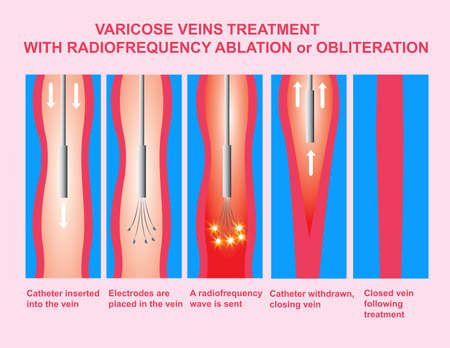 Varicose Veins. Treatment with radiofrequency ablation orobliteration of legs. Icon Vector Illustration