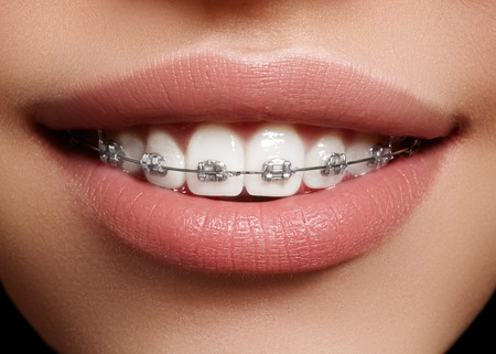 Beautiful macro shot of white teeth with braces. Dental care photo. Beauty woman smile with ortodontic accessories. Orthodontics treatment. Closeup of healthy female mouth Foto de archivo