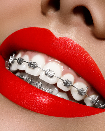 Beautiful macro shot of white teeth with braces. Dental care photo. Beauty woman smile with ortodontic accessories. Orthodontics treatment. Closeup of healthy female mouth Banque d'images