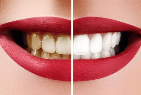 Closeup Macro of Female Teeth Before and After Whitening. Dental Health and Oral Care Concept. Happy Smile with Red Lips.