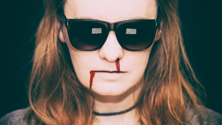 running nose: Young woman with sunglasses, with blood running from her nose and corner of the mouth Stock Photo