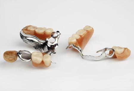 implants: dental implants on white background