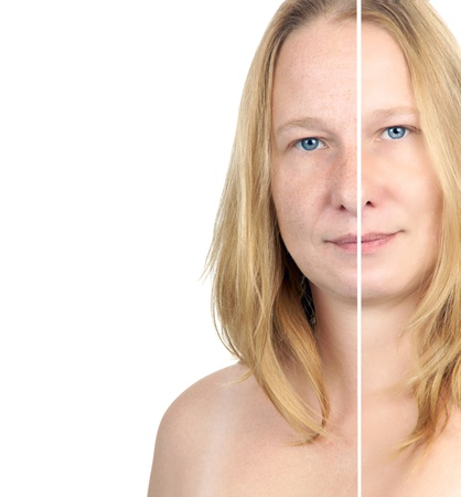before   after image of a woman