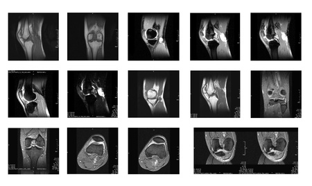MRI images - Knee Stock Photo