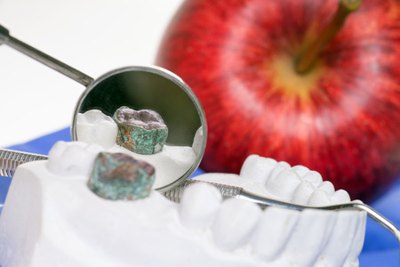 Apple and model of a human teeth photo