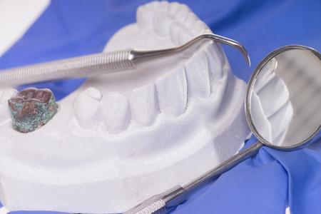 molares: Espejo de boca y el modelo de los dientes humanos