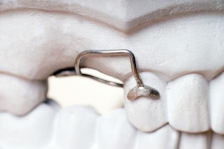 molares: Modelo de los dientes humanos