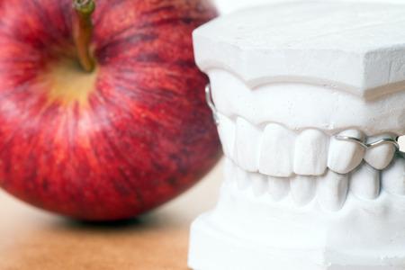 molares: Modelo de los dientes humanos con manzana