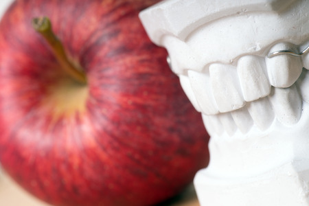 molars: Model of a human teeth with apple Stock Photo