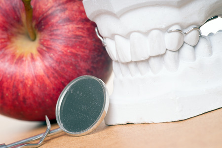 periodontitis: Model of a human teeth with apple and mouth mirror