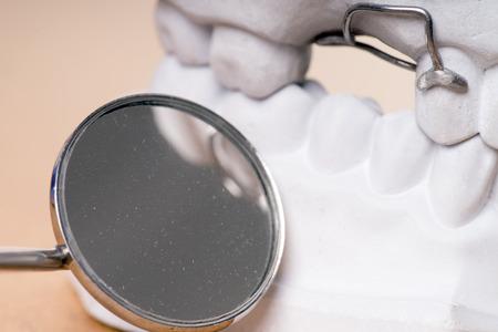 molares: modelo de los dientes humanos con espejo de boca Foto de archivo