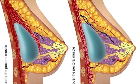 Plastic surgery of breast implants