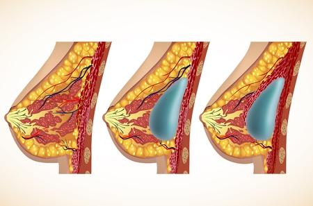 Anatomie van de borst en implantaten Vector