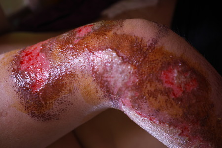 incision: Physical human injury wound medicine healthcare. macro