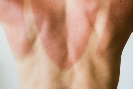 Close-up of a sunburn marks on a woman's back Stockfoto