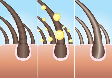 Illustration of three phase of hair cure, vector Stock Photo