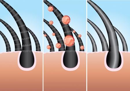 Illustratie van driefase van haarbehandeling