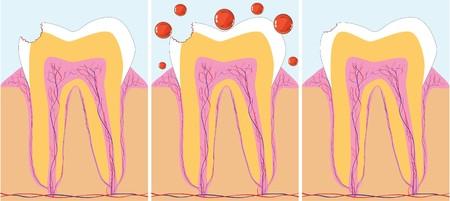 karies: Three phase of caries treatment,  illustration