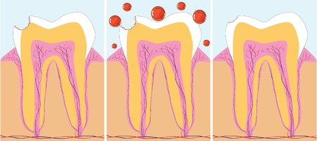 dental prophylaxis: Three phase of caries treatment,  illustration