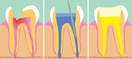 caries dental: Ilustraci�n de vectores de tres fases de la odontolog�a, Vectores