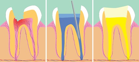 karies: Three phase of dentistry, vector illustration