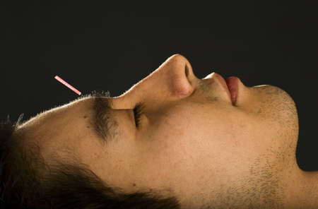 Profile of male patients face receiving acupuncture