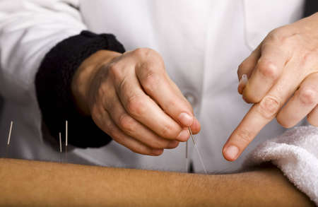 Close-up of acupuncturists hands working on male patients back