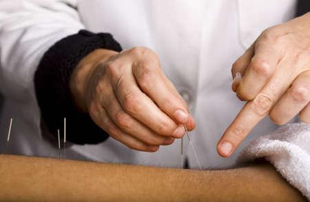 acupuntura china: Detalle de las manos acupuntores que trabajan en los pacientes varones de nuevo