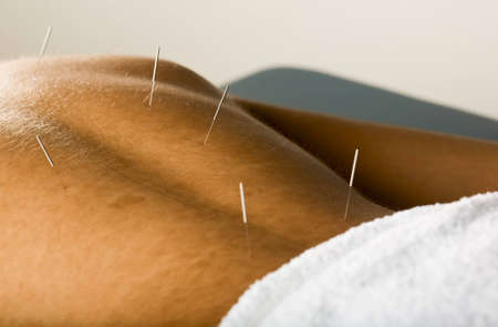 Male patient receiving acupuncture treatment to his back