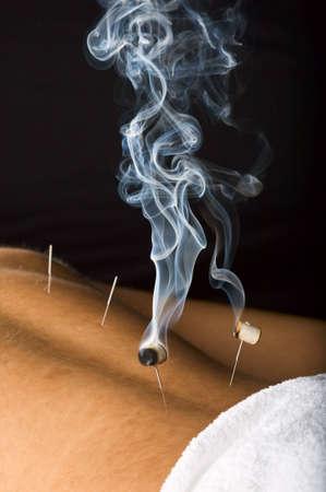 acupuntura china: Paciente que recibe tratamiento de acupuntura en la espalda