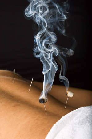 Patient receiving acupuncture treatment to his back photo