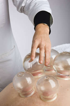color therapy: Acupuncturist performs vacuum cupping on patients back Stock Photo