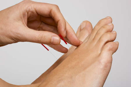 Acupuncture needle being applied to foot