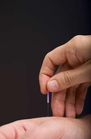 acupuncturist: Acupunturista la aplicaci�n de agujas a los pacientes a mano Foto de archivo